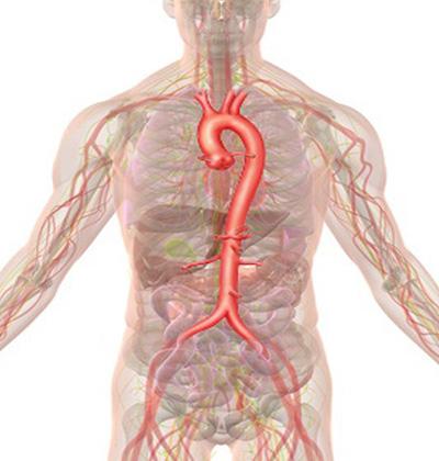 大動脈瘤とは 大阪大学 低侵襲循環器医療学寄附講座